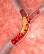 Prescrizione di testosterone si associa a un eccesso di rischio di tromboembolismo venoso