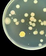 Antibioticoresistenza, Iss: ospedali incubatori di superbug