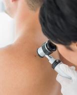 Farmaci disfunzione erettile, Fda avvia studio su correlazione con melanoma