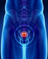 Integratore combatte progressione del tumore alla prostata