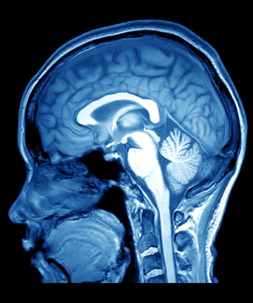 Salbutamolo riduce rischio di malattia di Parkinson e apre strada a nuove terapie