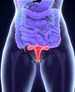 Carcinoma ovarico, studio Ieo svela le componenti molecolari